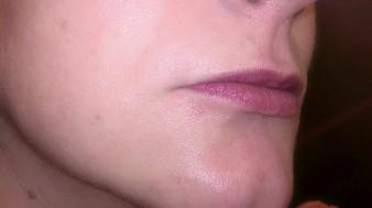 03-modelowanie ust-kwasem-hialuronowym-przed-02