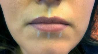 05-modelowanie ust-kwasem-hialuronowym-przed-03