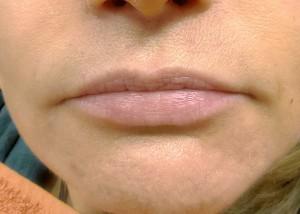11-modelowanie ust-kwasem-hialuronowym-przed-06