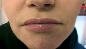 12-modelowanie ust-kwasem-hialuronowym-po-06